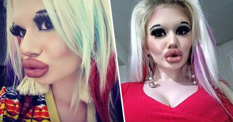 Meet Student with the 'biggest lips in the world